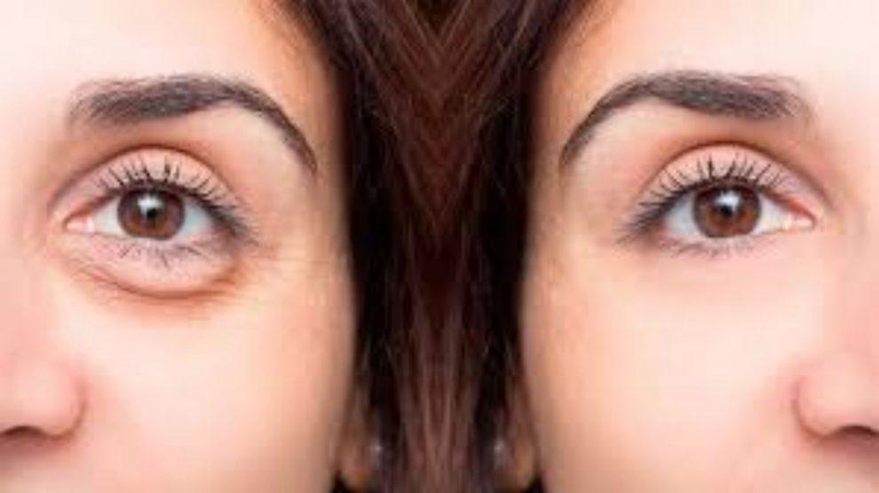 Uso de máscaras aumenta interesse por cirurgia na região dos olhos